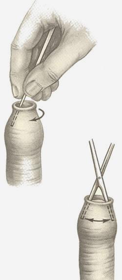 11Секс с закрытой головкой пениса